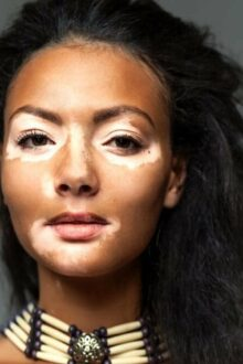 After Finally Displaying Vitiligo in an Egyptian Series, Here're Seven Categories That Need More Representation